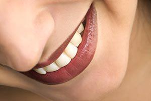 Отбеливание зубов - плюсы и минусы, комментарии экспертов