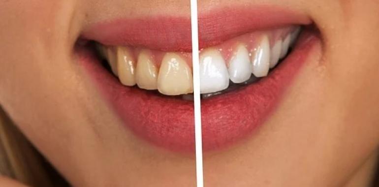 Зубные импланты Artimplant: в чем преимущества