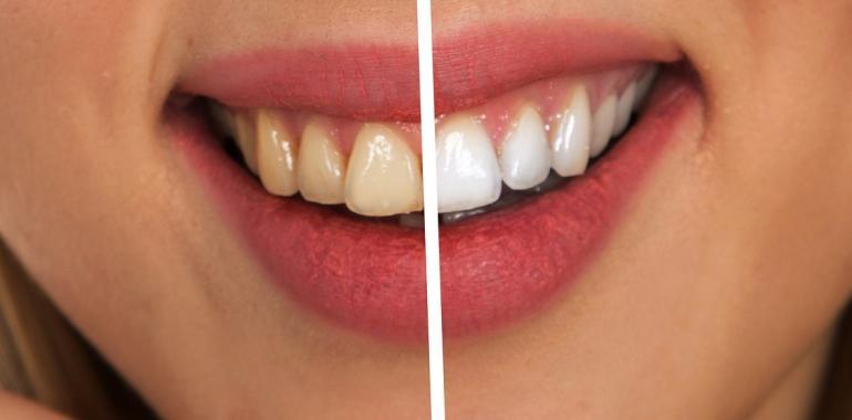 Ирригатор для полости рта – польза и вред