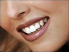 От улыбки станет всем светлей - как отбелить зубы?